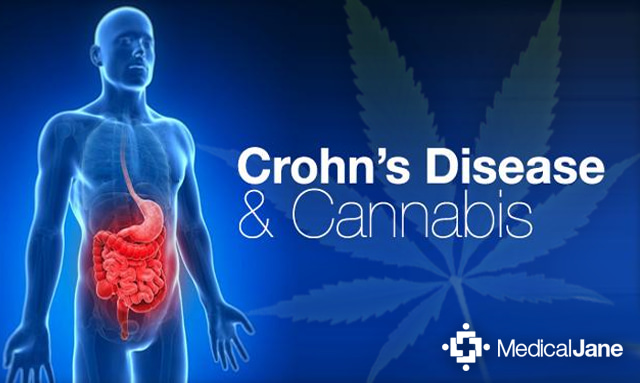 Image Result For Can Ibd In
