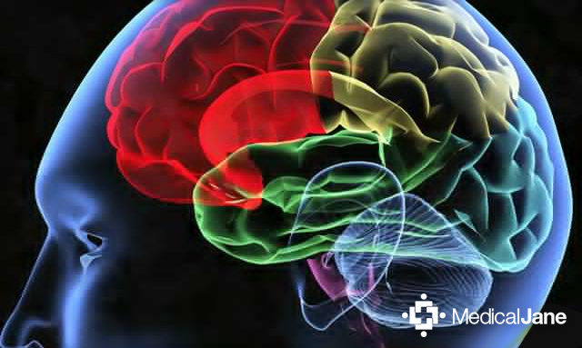 CBD May Prevent Damage Caused By Iron Buildup In Brain