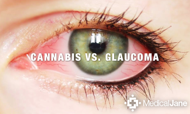 Image result for Top 4 Benefits of Cannabis For Glaucoma