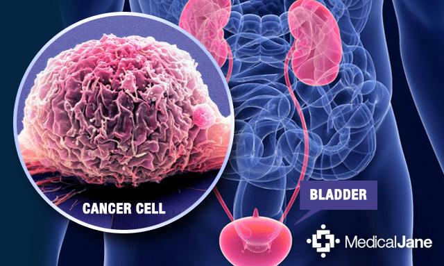 Bladder cancer   Cancer Research UK
