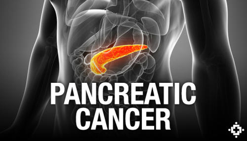 Cannabinoids May Fight Pancreatic Cancer Growth