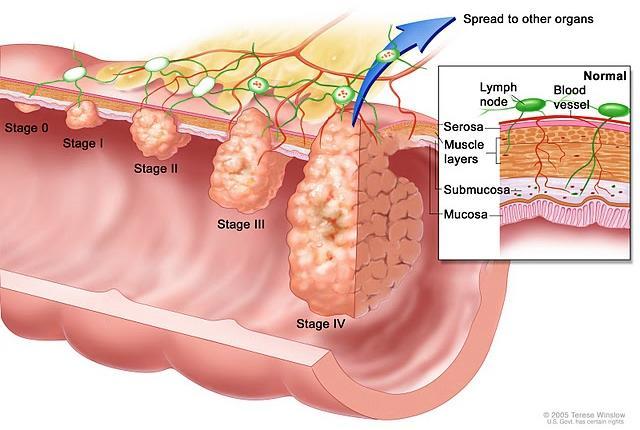 study: whole-plant cannabis use vs. bladder cancer, Human Body